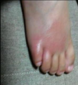 かゆい とき しもやけ しもやけを即効で治した!手足の指の痒みを改善した3つの方法